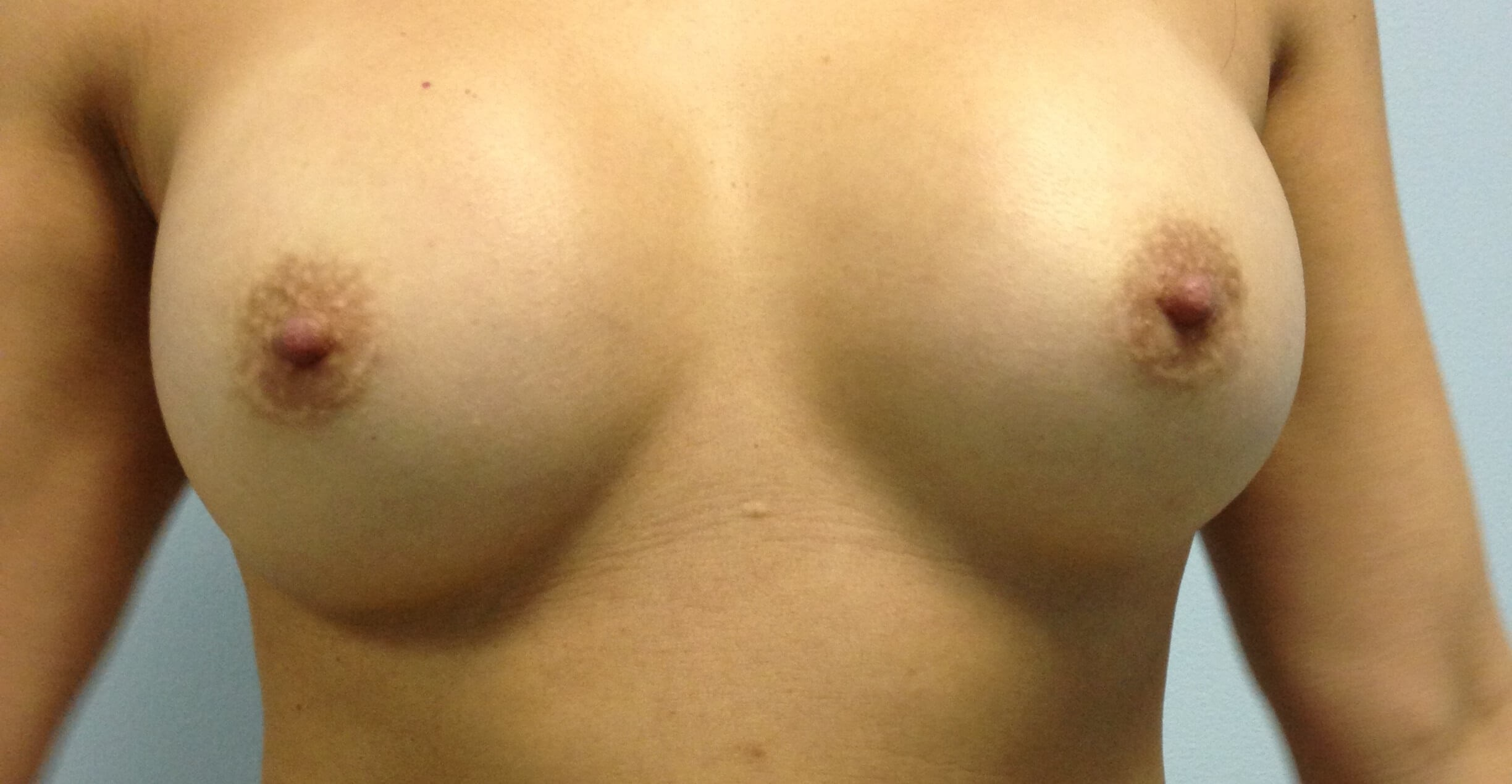 Breast View Before