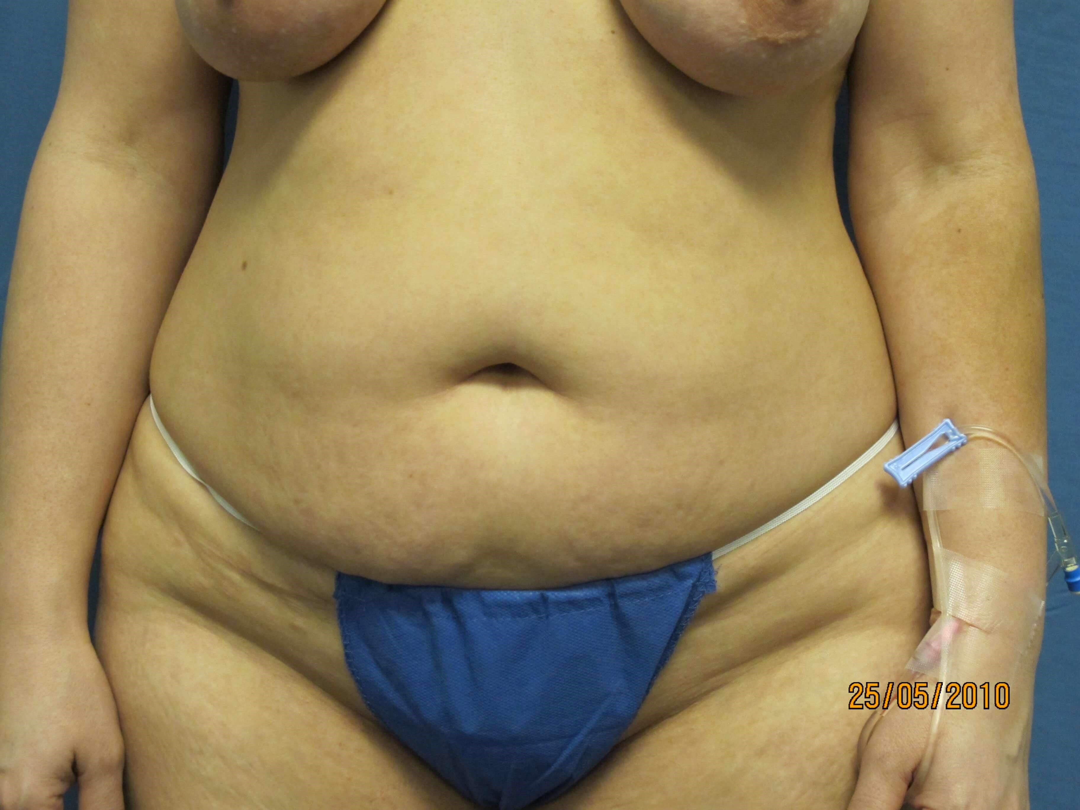 Front View of Tummy Tuck Before