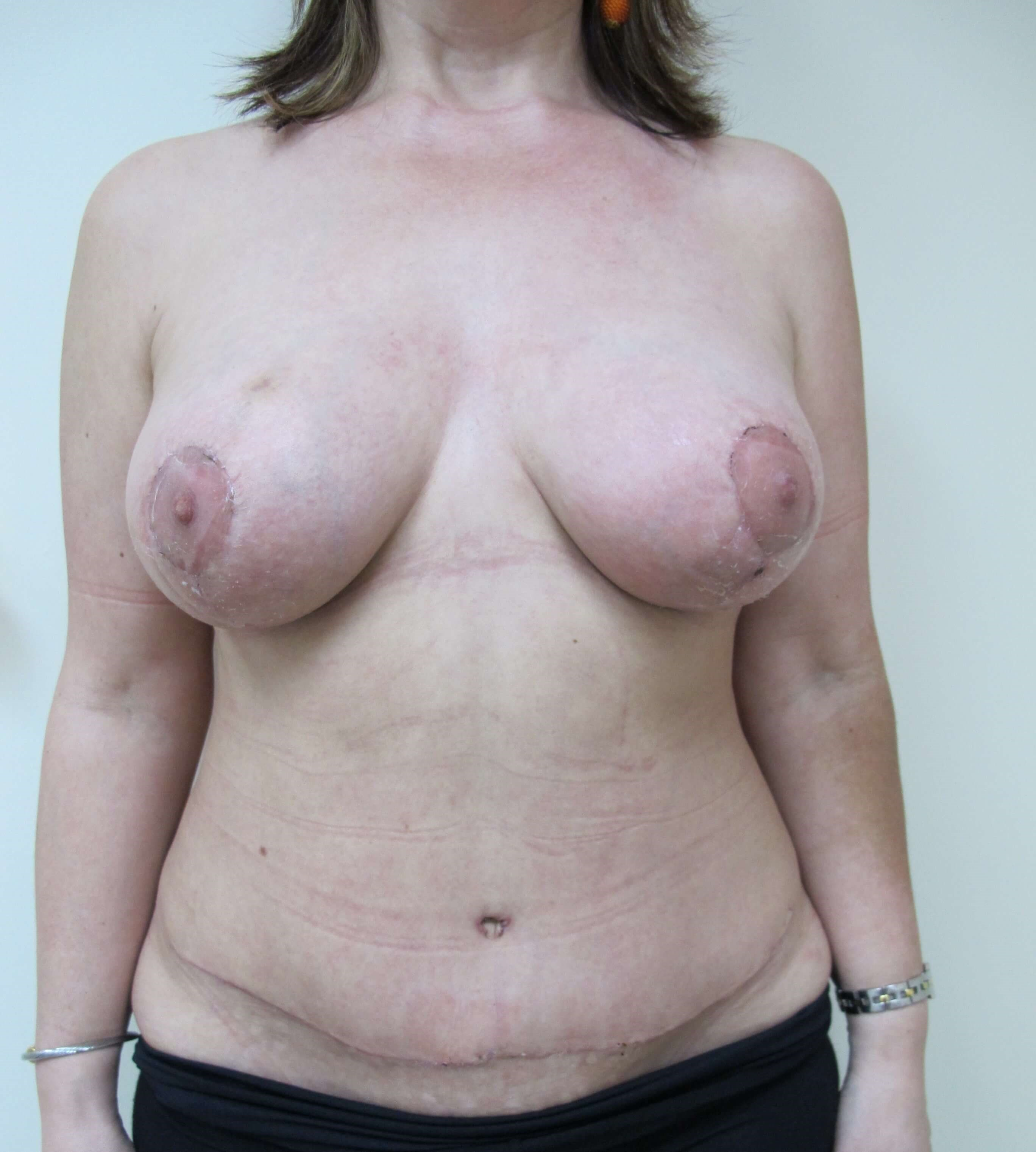 Front View of Tummy Tuck After