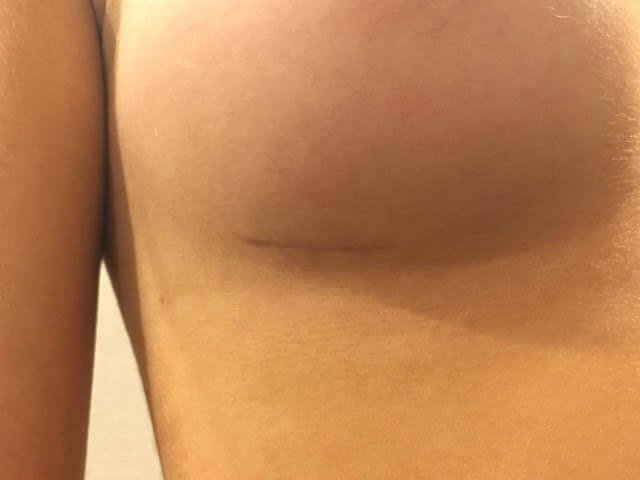 Incision Sites Right Breast