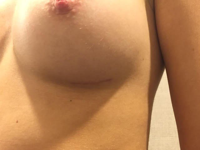 Incision Sites Left Breast