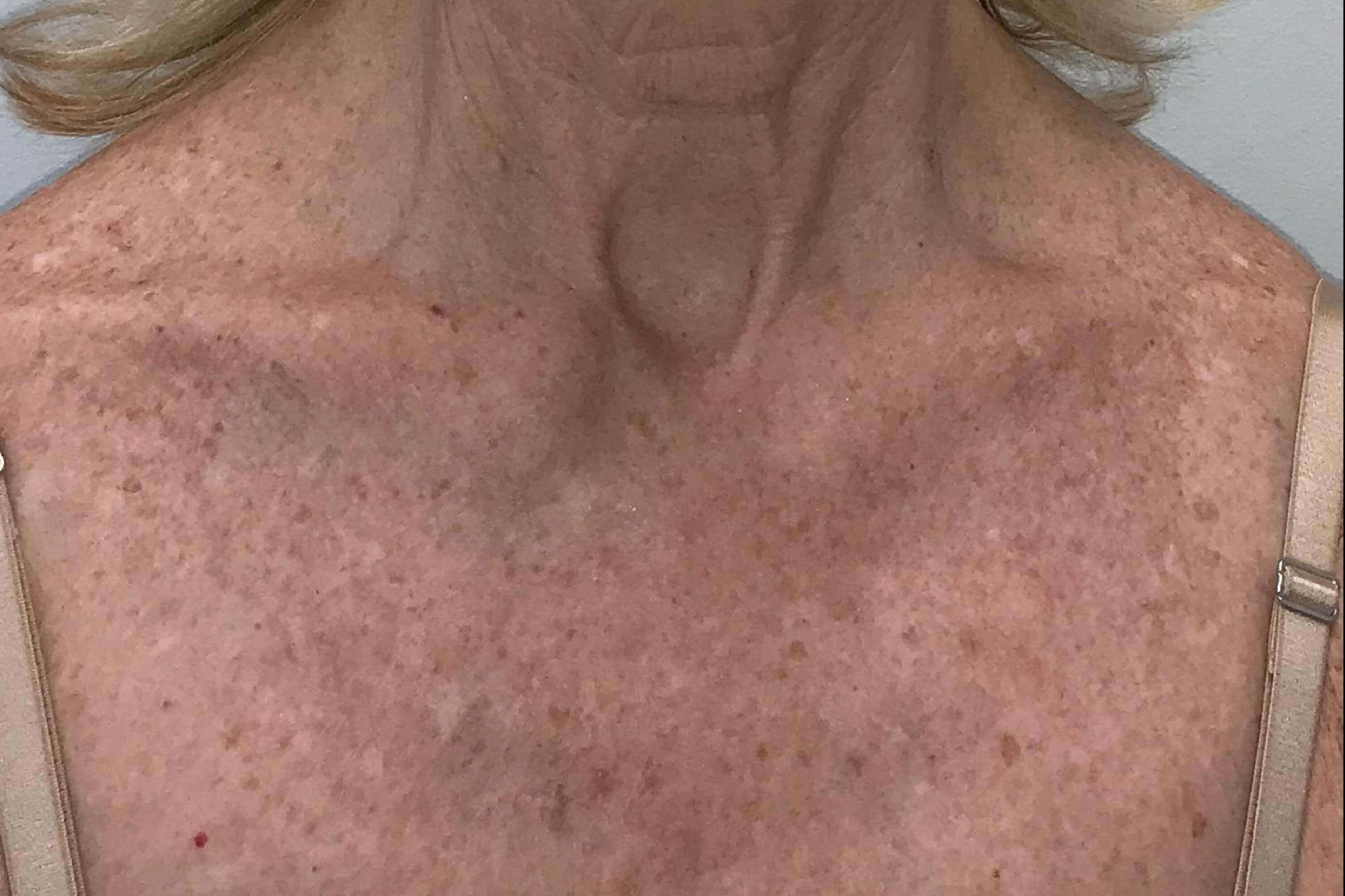 IPL and 1540 Laser Resurfacing Before IPL/Laser Resurfacing