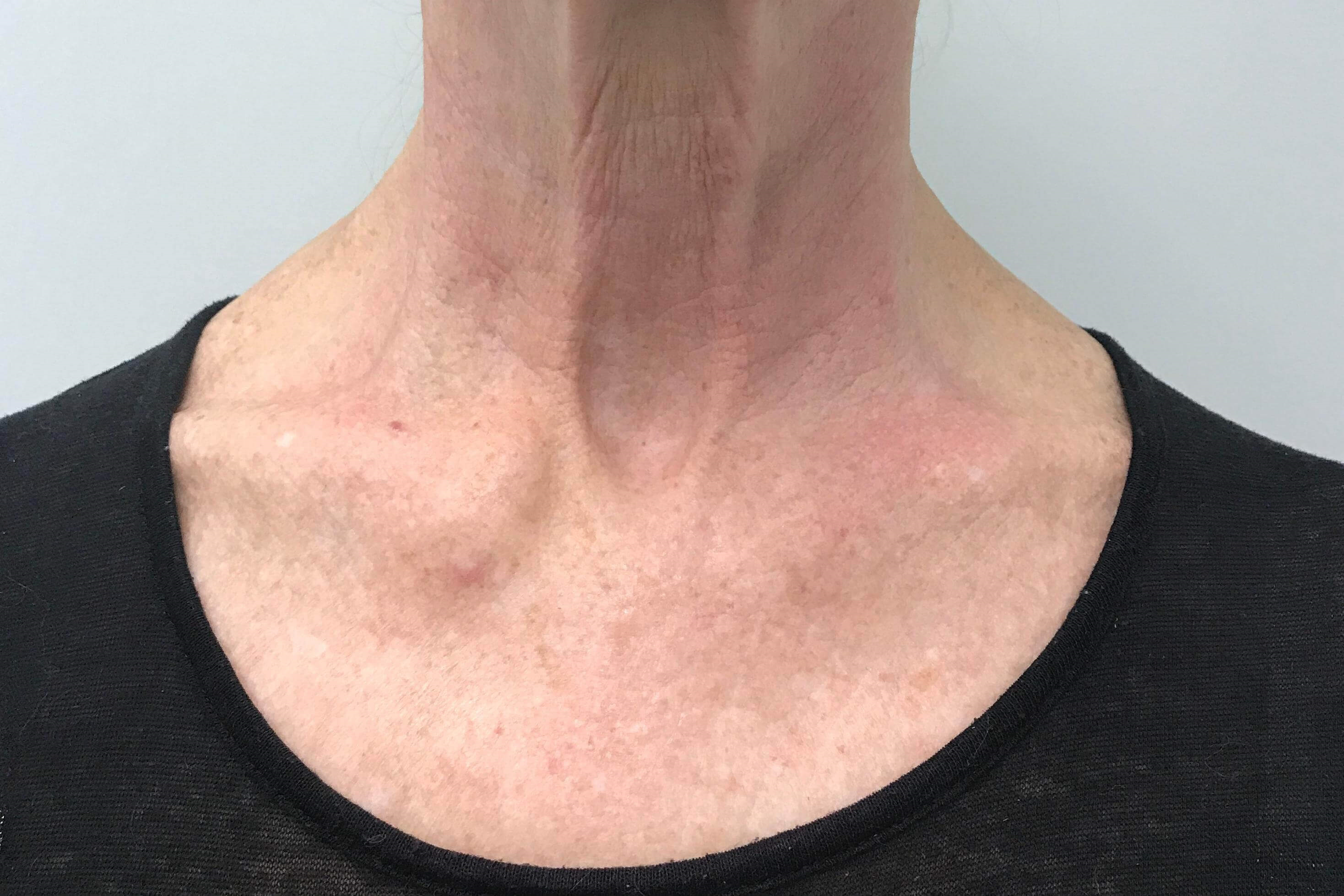 IPL and 1540 Laser Resurfacing After IPL/Laser Resurfacing