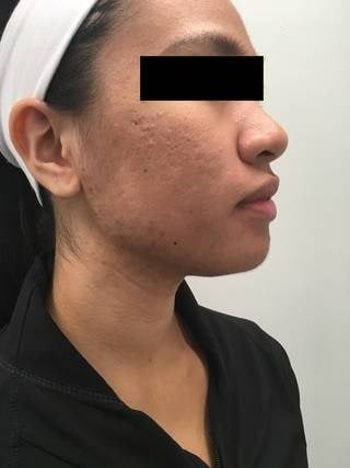 1540 Laser for Acne and Scars Before