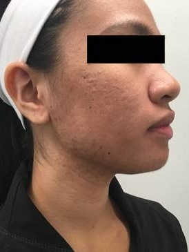1540 Laser for Acne Post 4 TX Before