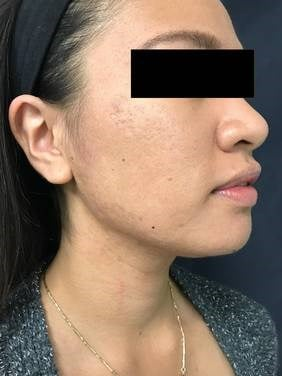 1540 Laser for Acne and Scars After 1 Treatment