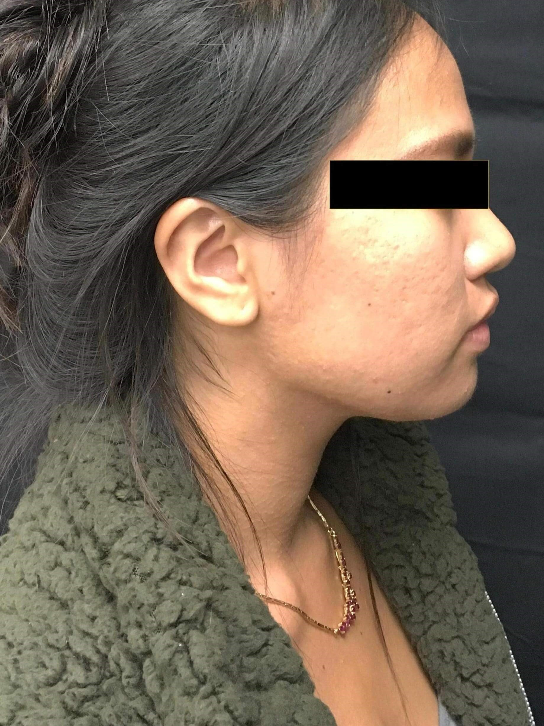 1540 Laser for Acne Post 4 TX After 4 Treatments