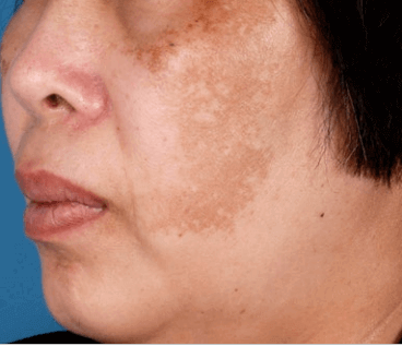 Melasma with HQ Resistance Before