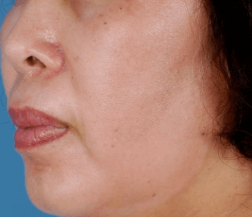 Melasma with HQ Resistance After