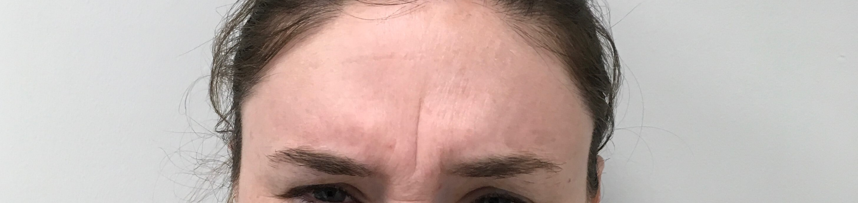 Botox on Forehead Before
