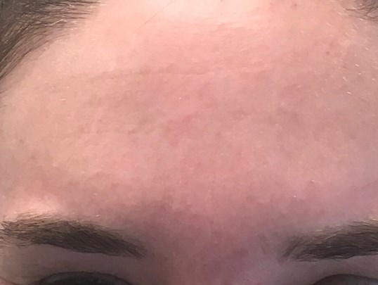 Botox on Forehead After