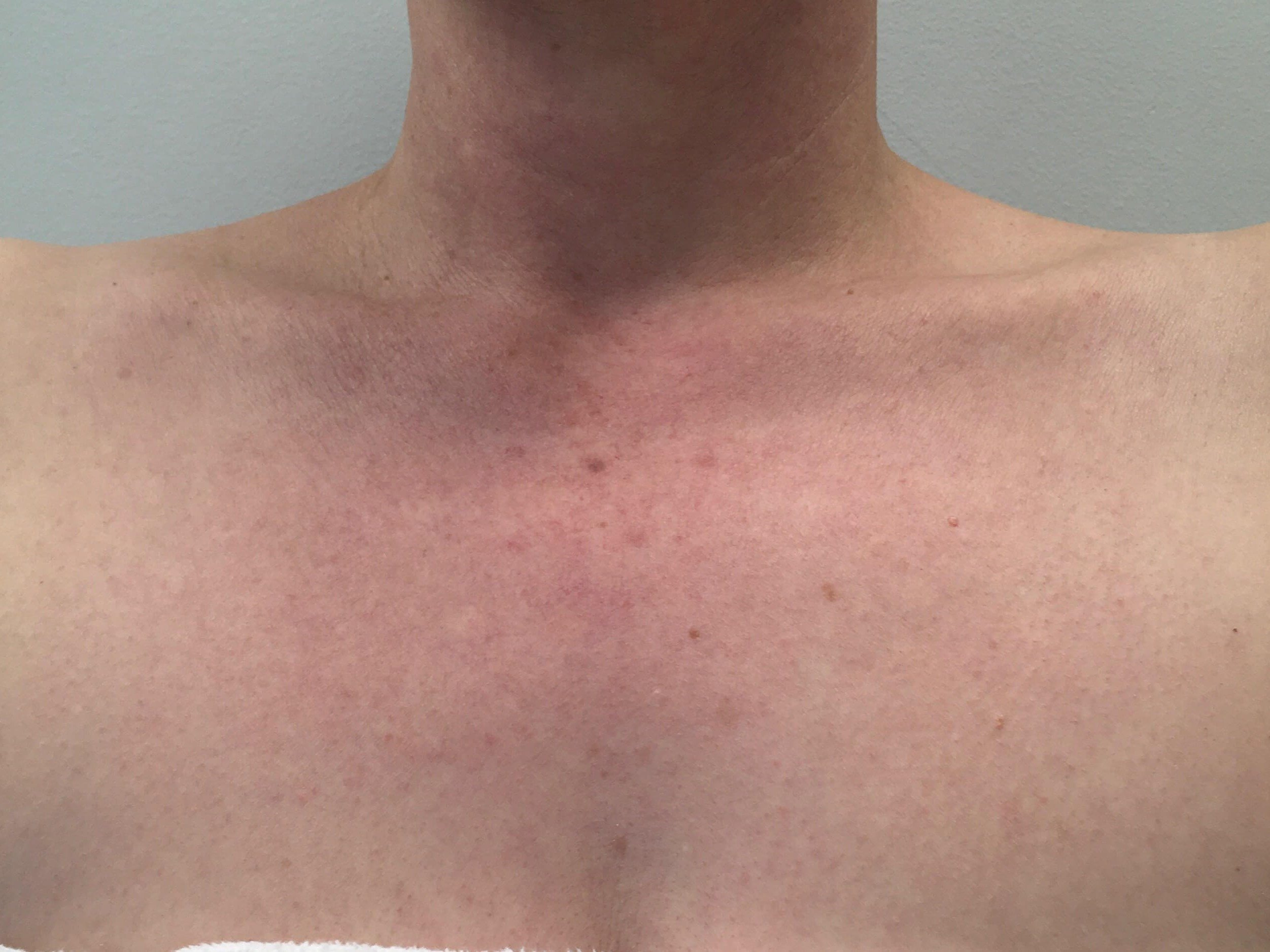 IPL Chest After