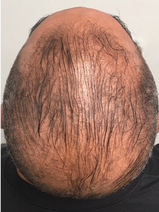 PRP Therapy Hair Restoration Before