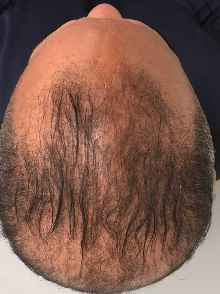 PRP Therapy Hair Restoration After