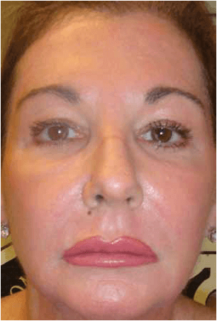 Laser Resurfacing After