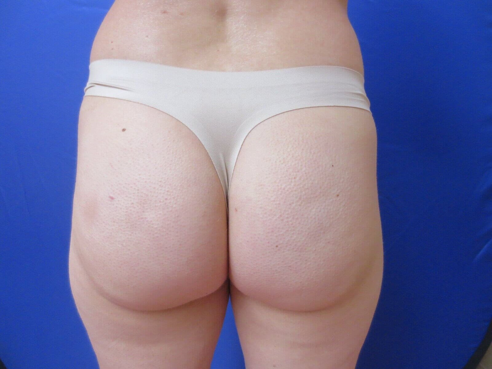 Sculptra Buttock Augmentation Before