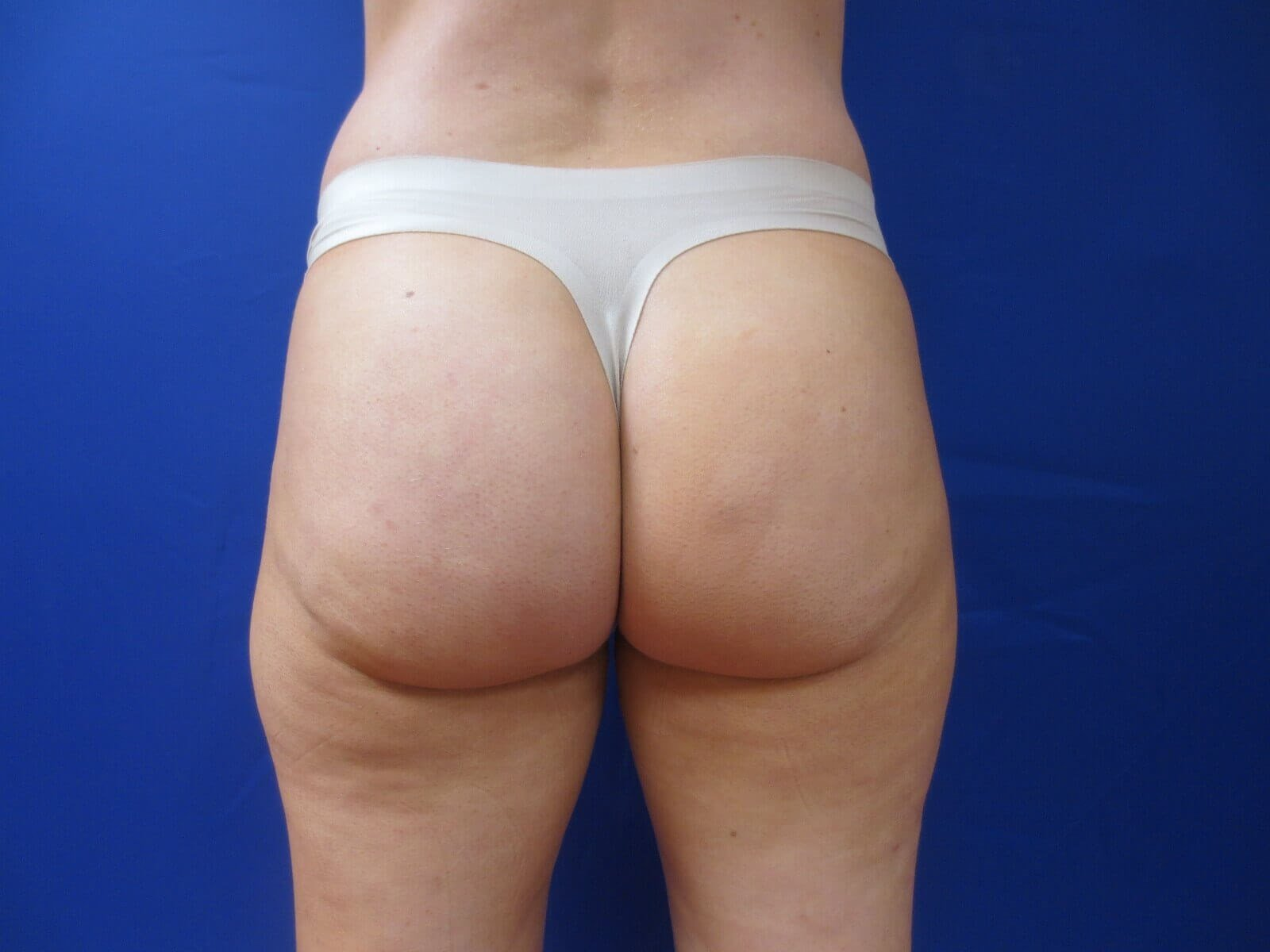 Sculptra Buttock Augmentation After