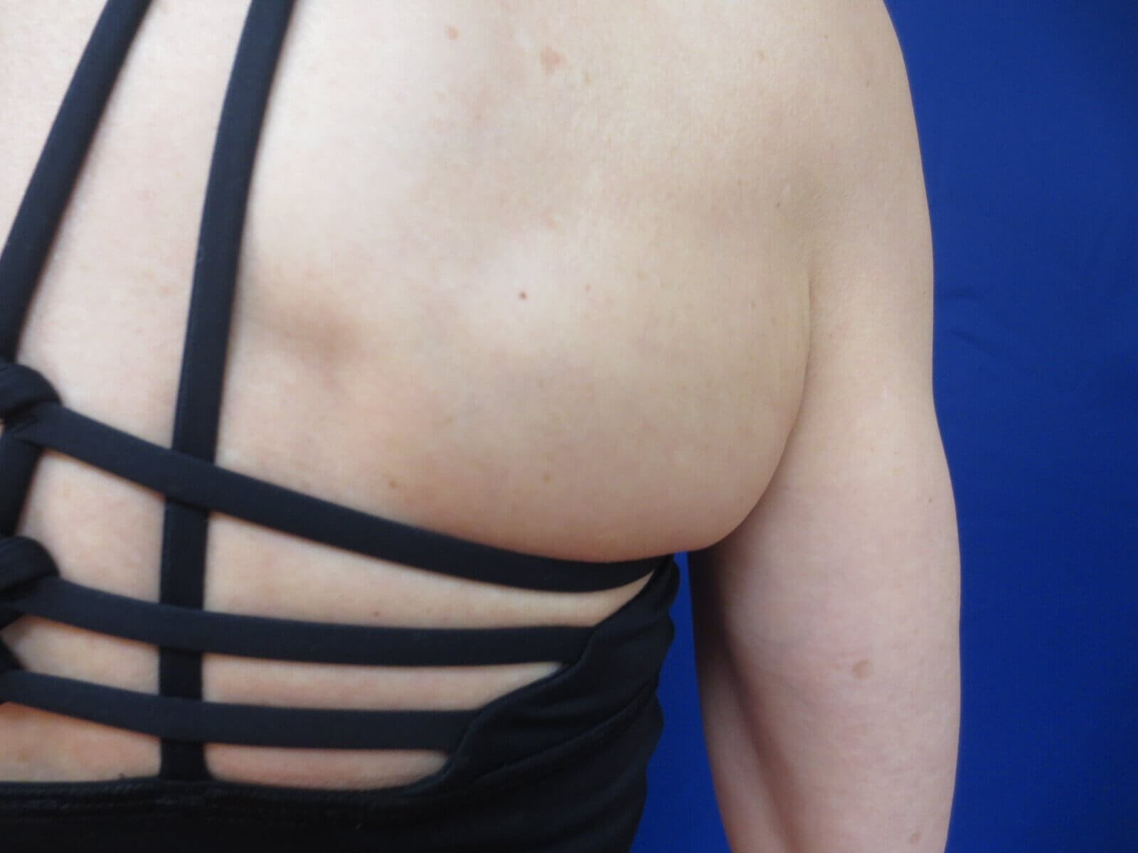 Kybella for Bra Fat Before