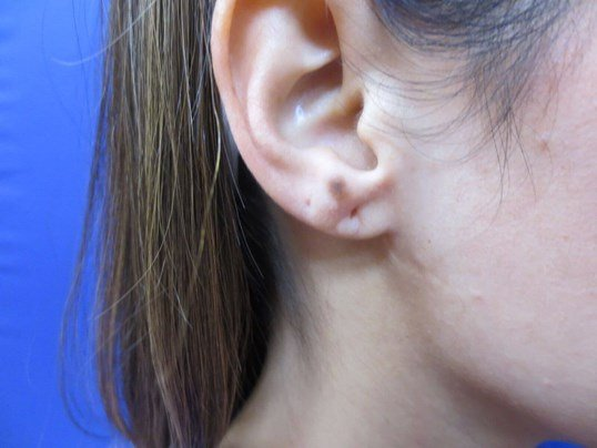 Juvederm Earlobe filler Before