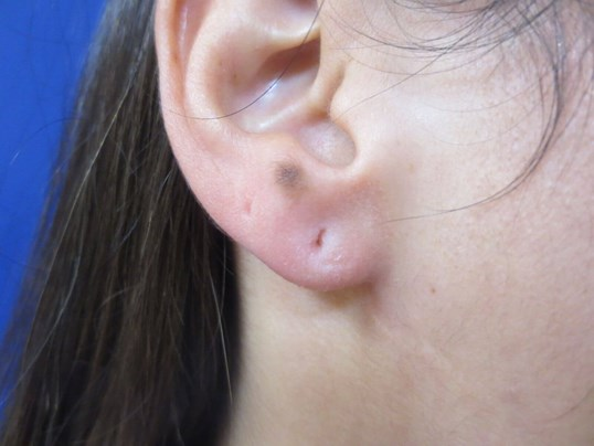 Juvederm Earlobe filler After