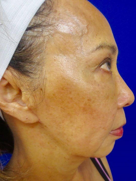 Lumecca IPL Before