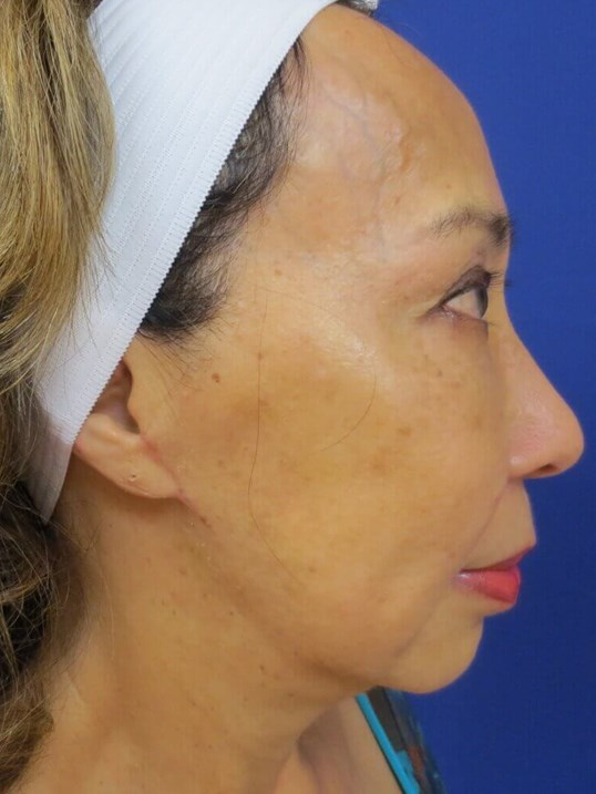 Lumecca IPL After