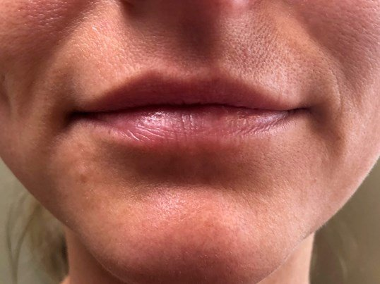 Versa Lip Filler Before