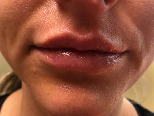 Versa Lip Filler After