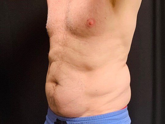 Coolsculpting, Abdomen Before