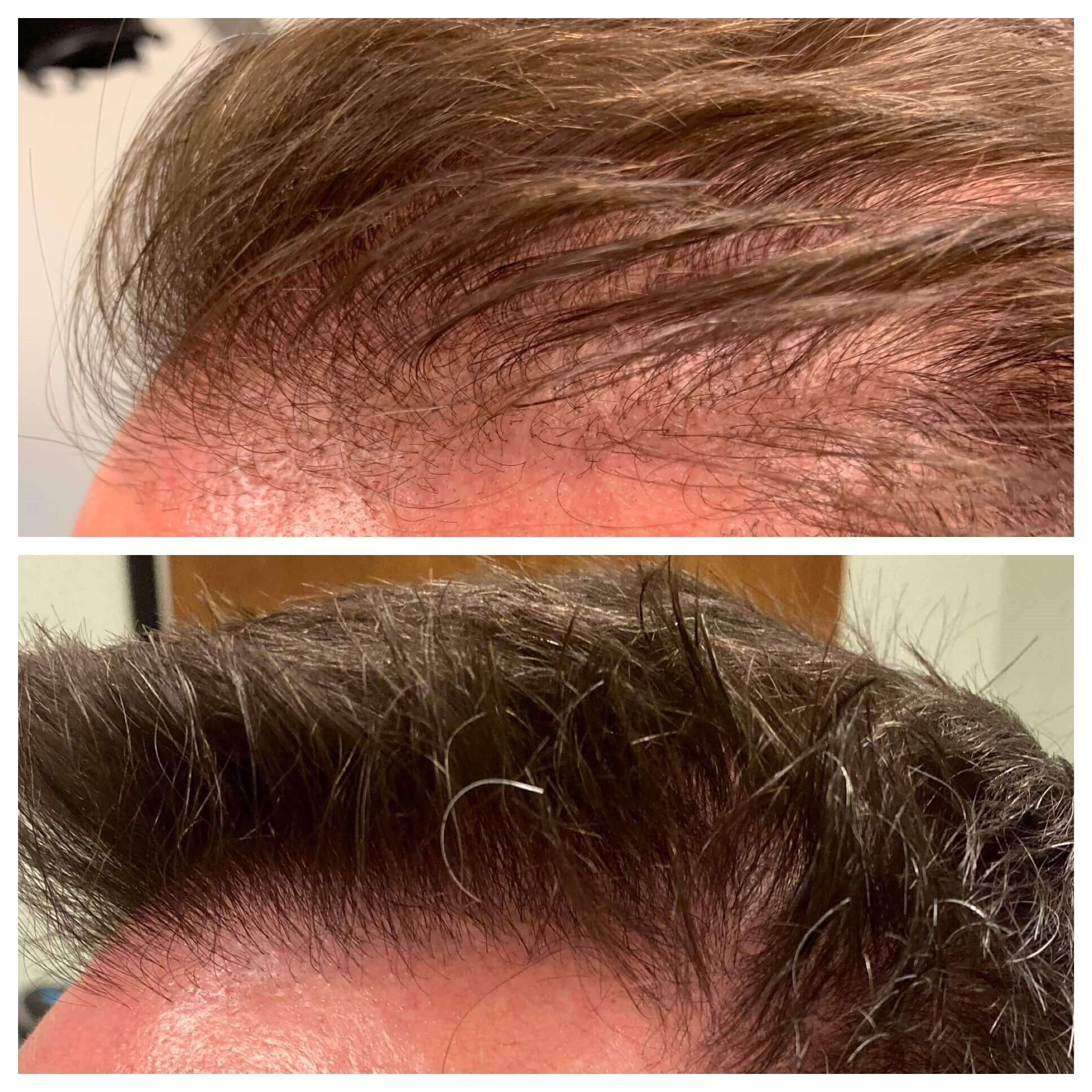 51 Year Old, Male, Phoenix AZ Top: Before  Bottom: 6mo After