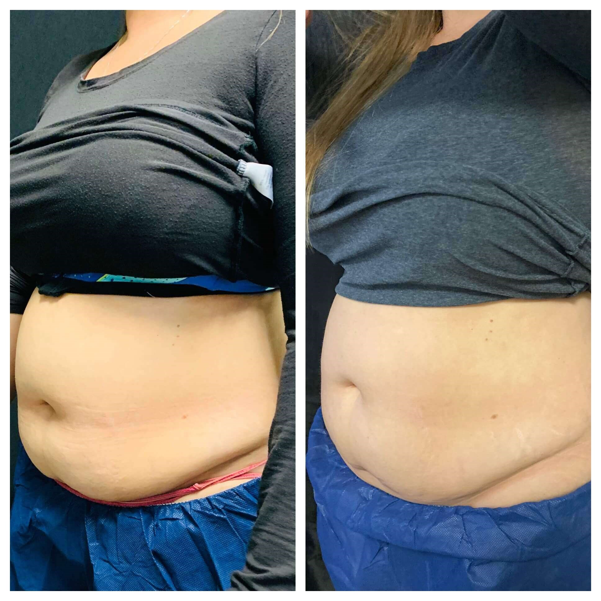 Coolsculpting, Phoenix AZ Before: Left  After: Right