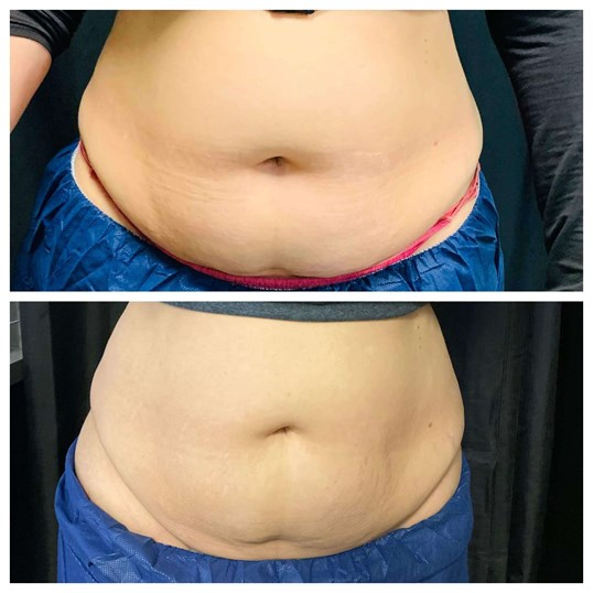 Coolsculpting, Phoenix AZ Before: Top  After: Bottom