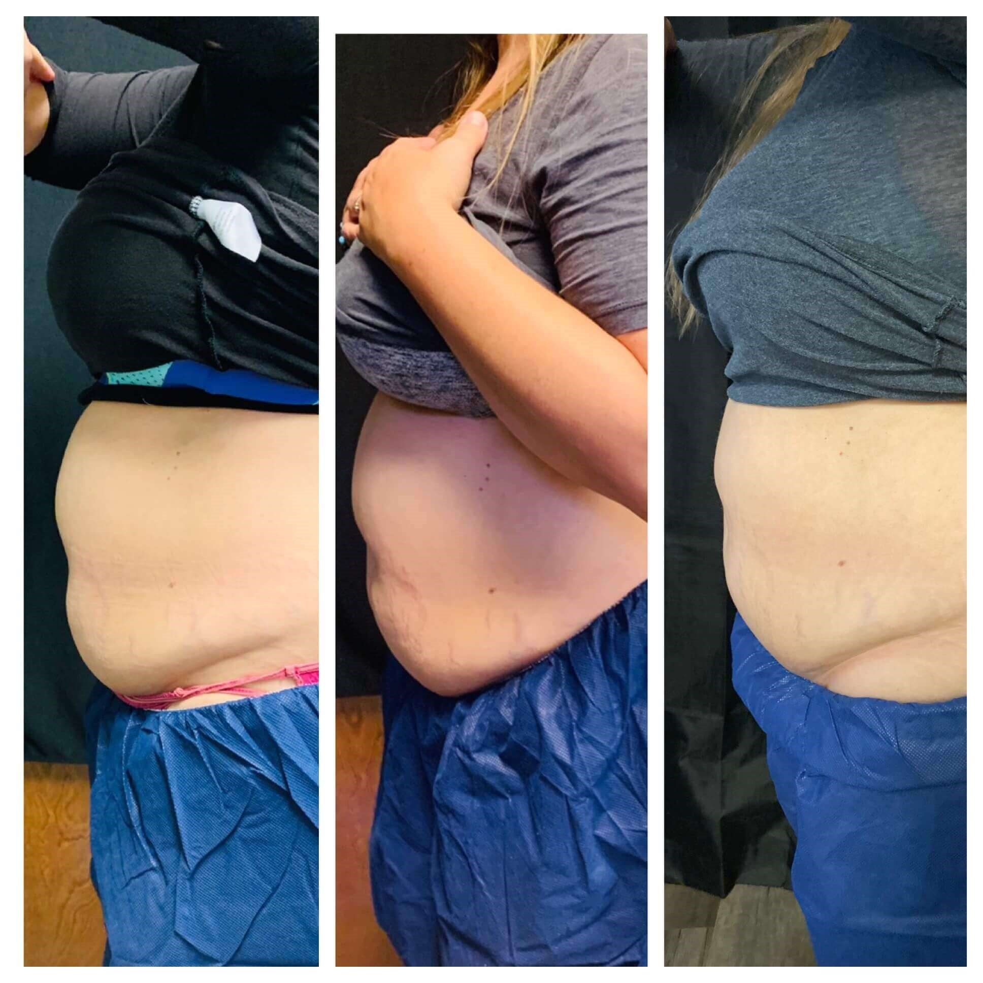 Coolsculpting, Phoenix AZ Before, 2weeks, 90 days