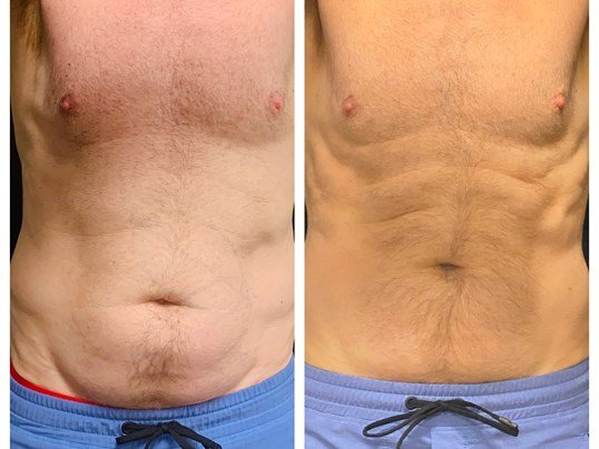 Coolsculpting, Abdomen Before/After 3 months