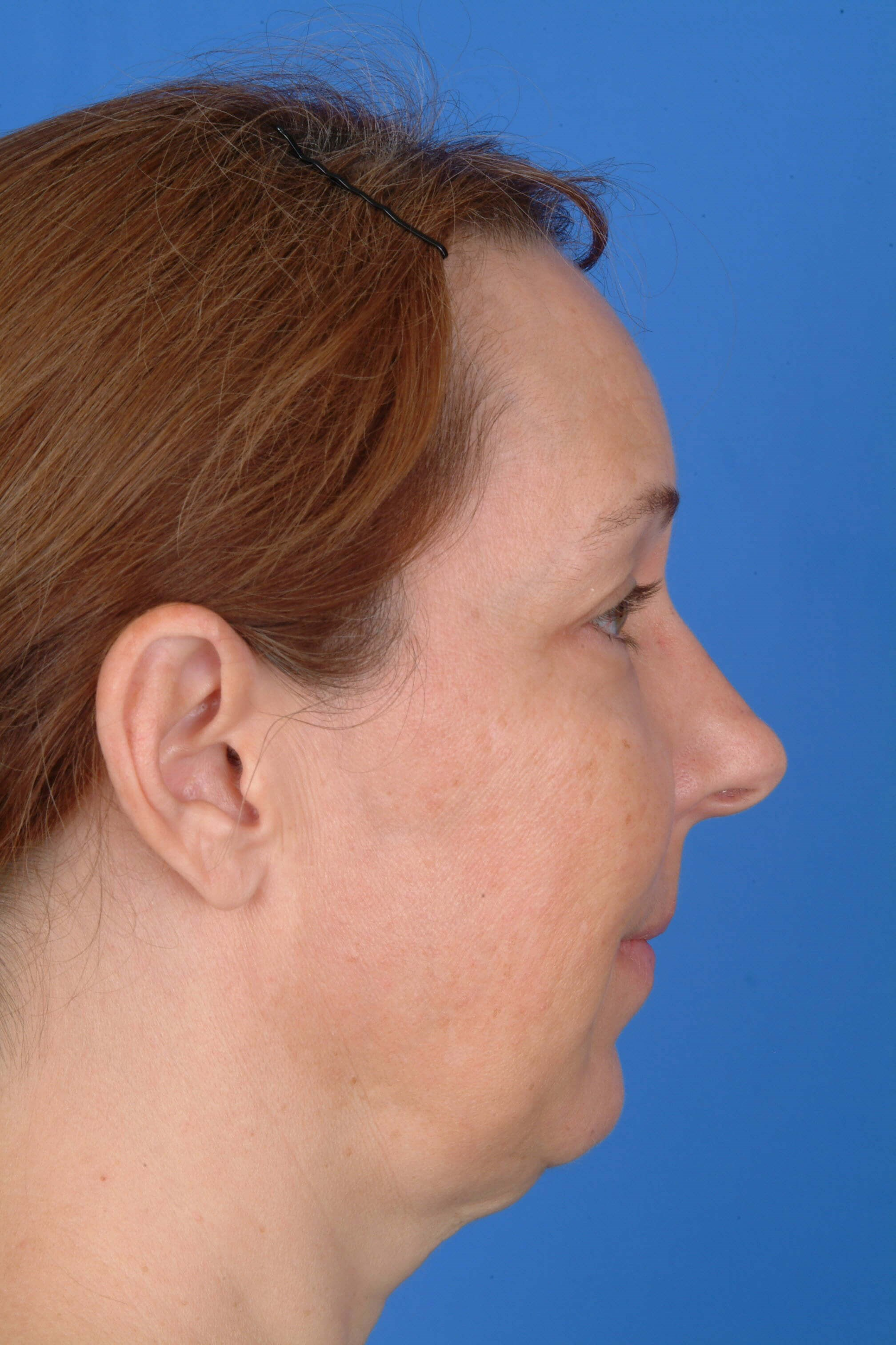 Side View Before Facelift and Eyelids
