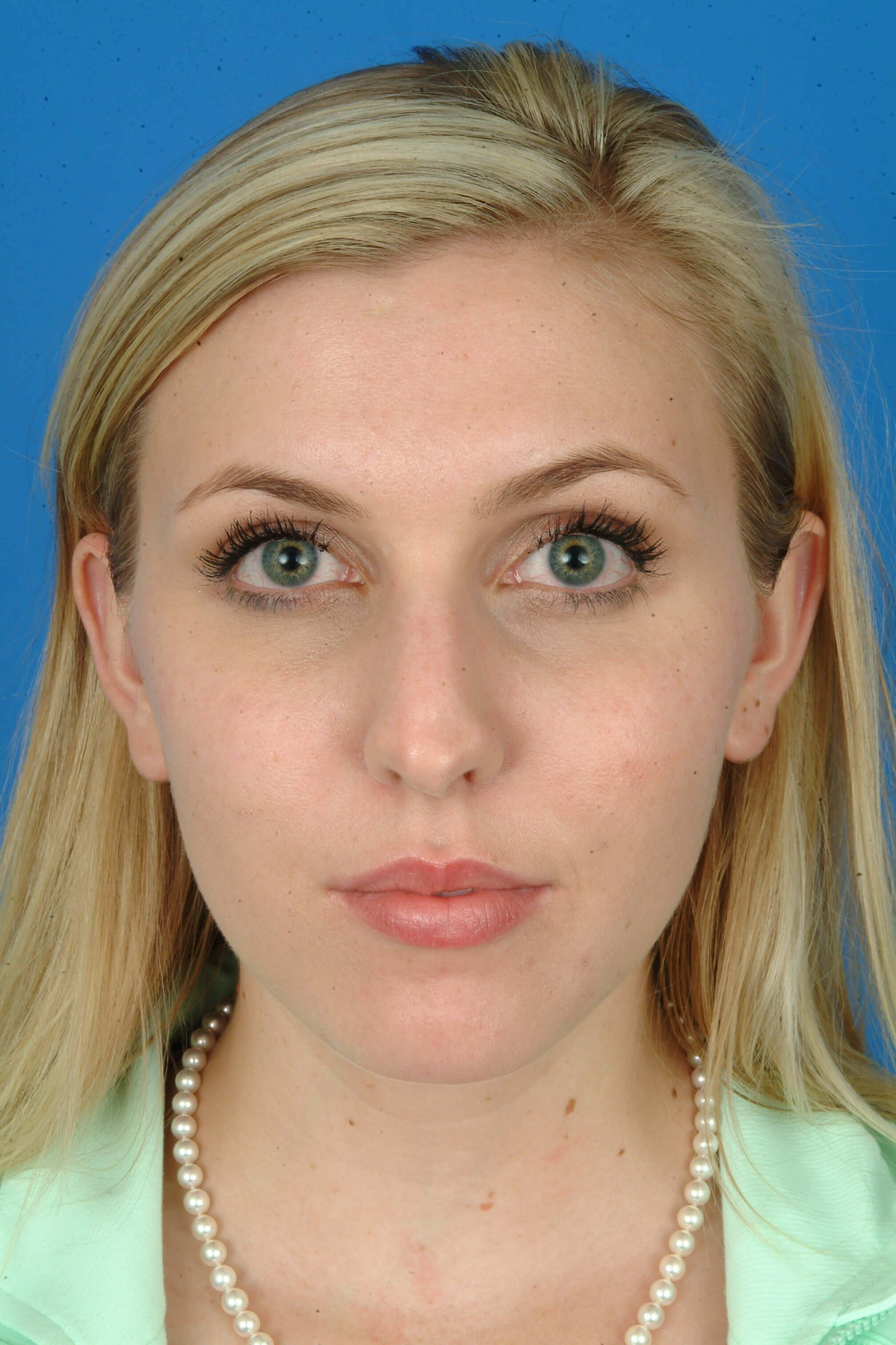 Front View Before Revision Rhinoplasty