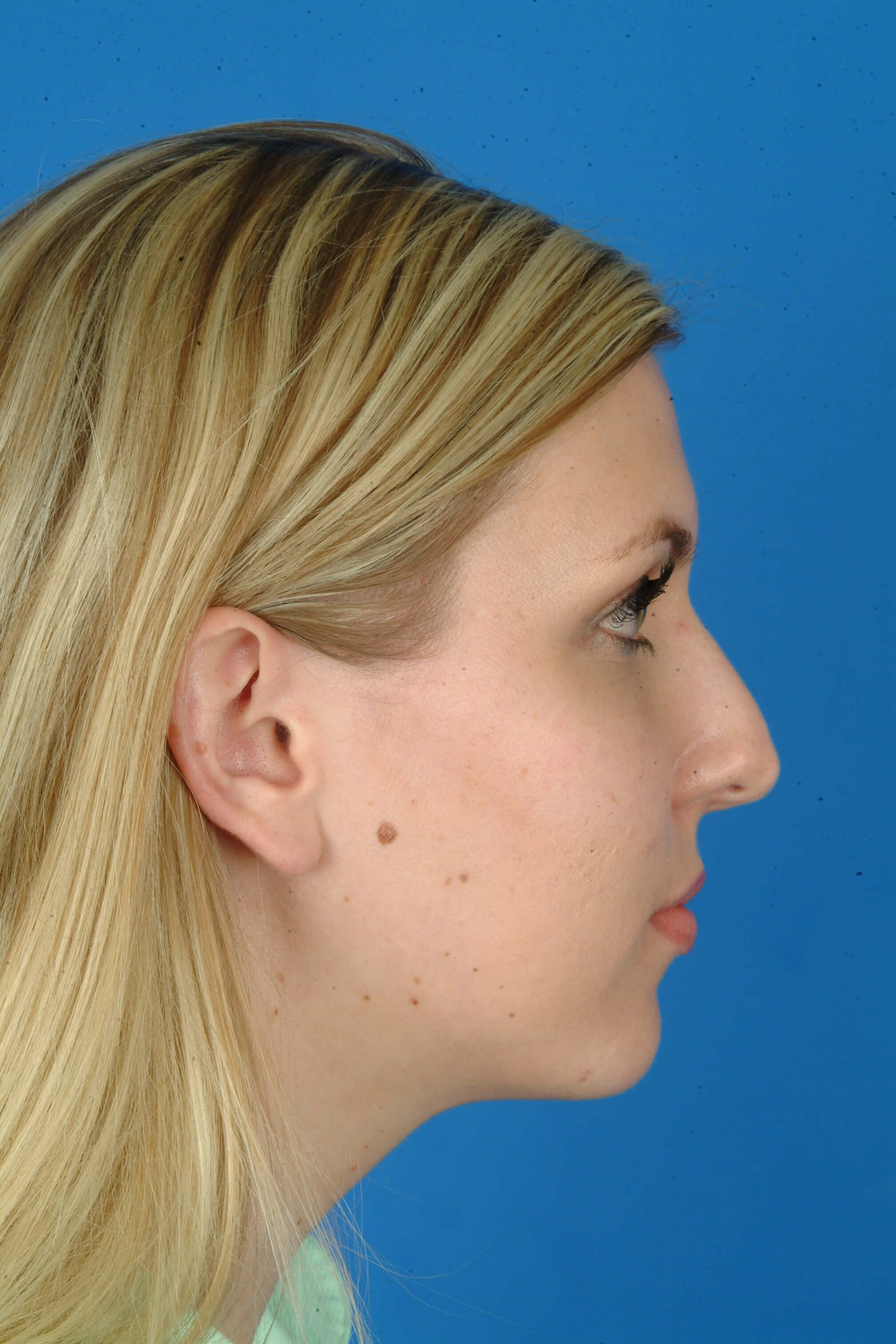 Side View Before Revision Rhinoplasty