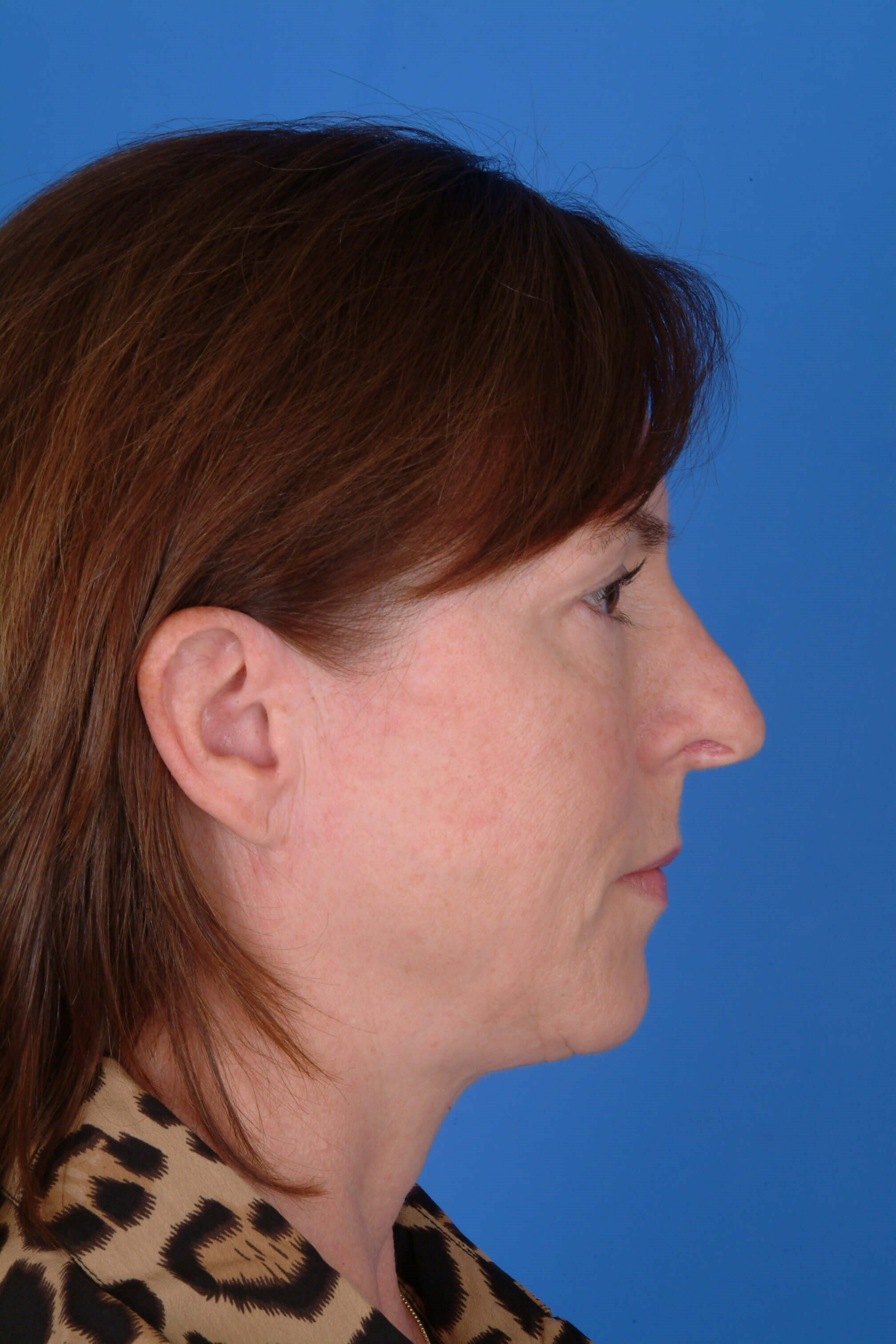 Profile View Before Revision Rhinoplasty