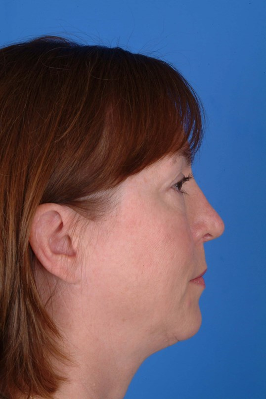Profile View After: 7 Months Post Op