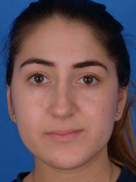 Before And After Revision Rhinoplasty Turbinate Reduction Septoplasty Photos