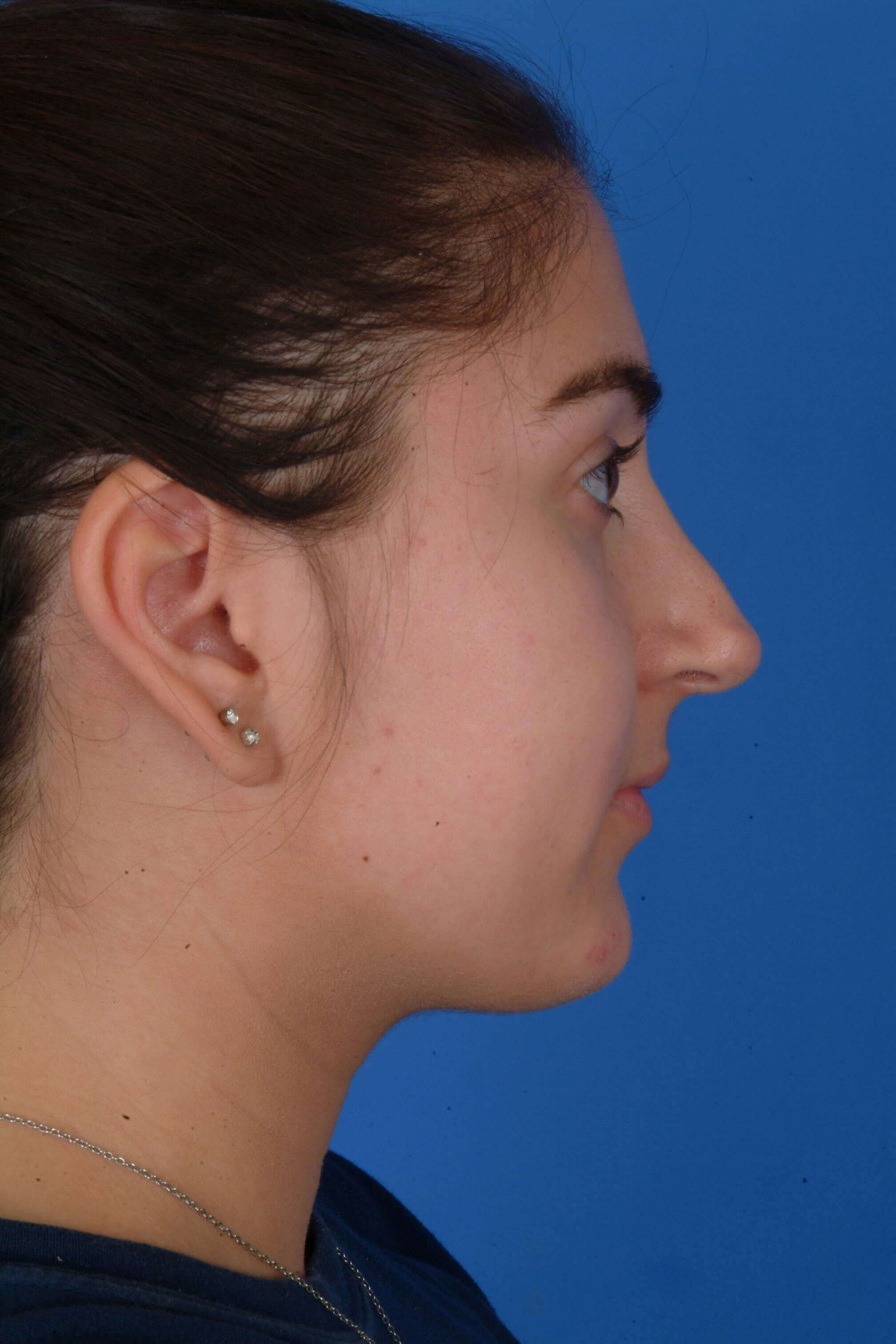 Revision Rhinoplasty Before: Pre-Op Right Profile