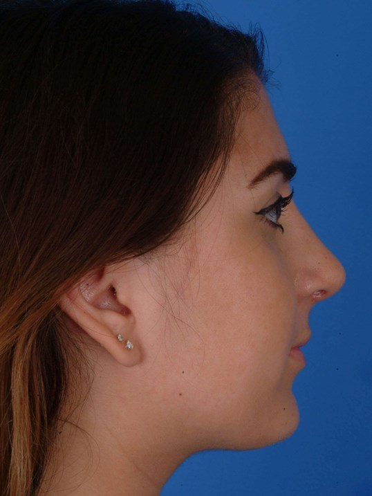 Revision Rhinoplasty After: Post-op 1 mo 6 days