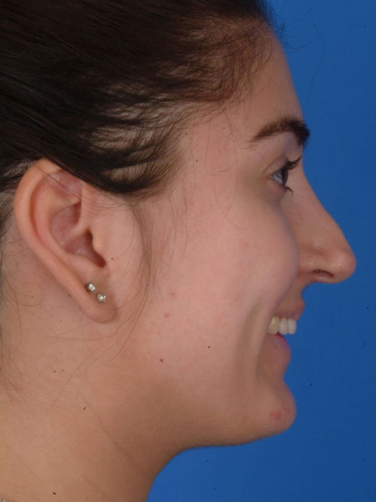 Revision Rhinoplasty Pre-op Right Profile Smiling