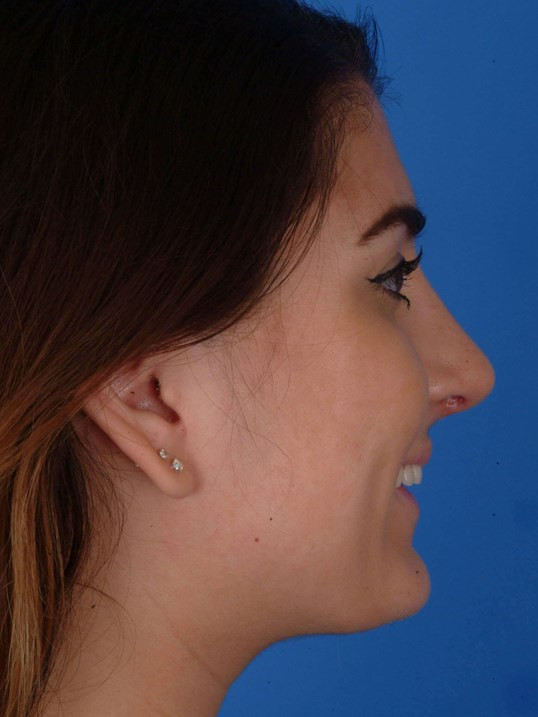Revision Rhinoplasty 1mo 6 days Post-op Rt Smiling