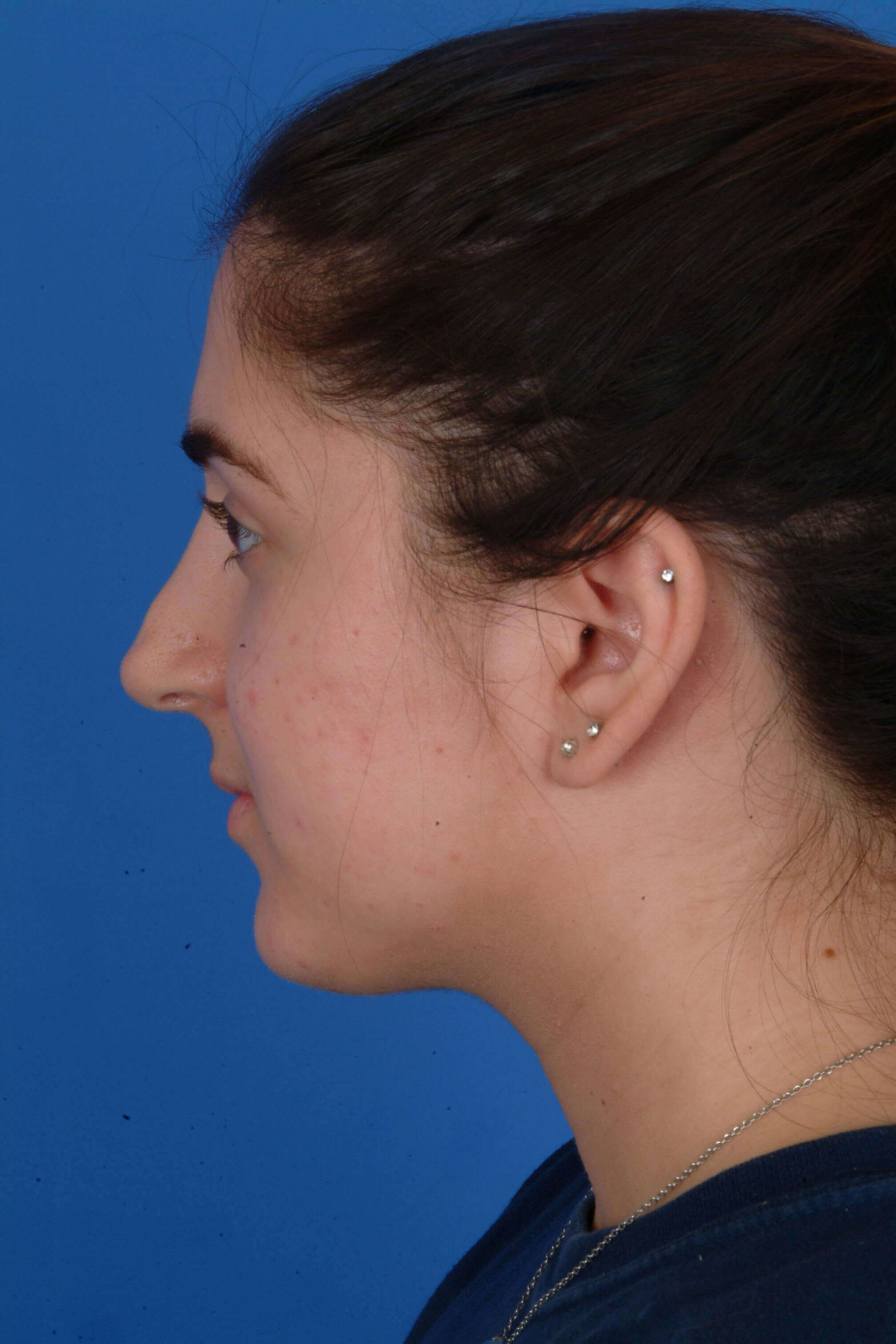 Revision Rhinoplasty Before: Pre-op Left Profile