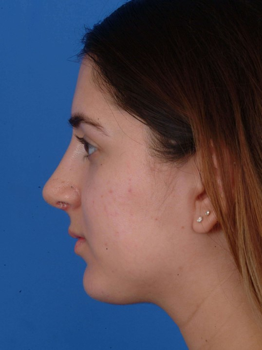 Revision Rhinoplasty After: 1 mo 6 days Post-op