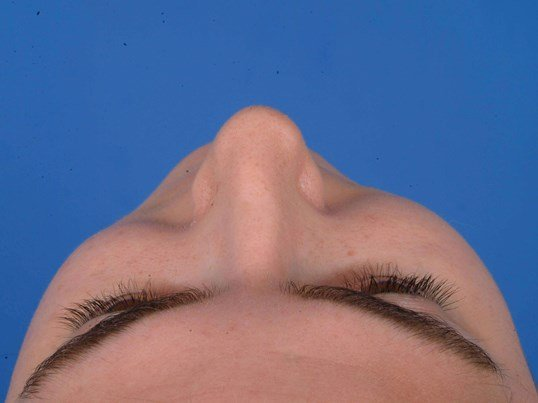 Revision Rhinoplasty Before: Pre-op Sky View