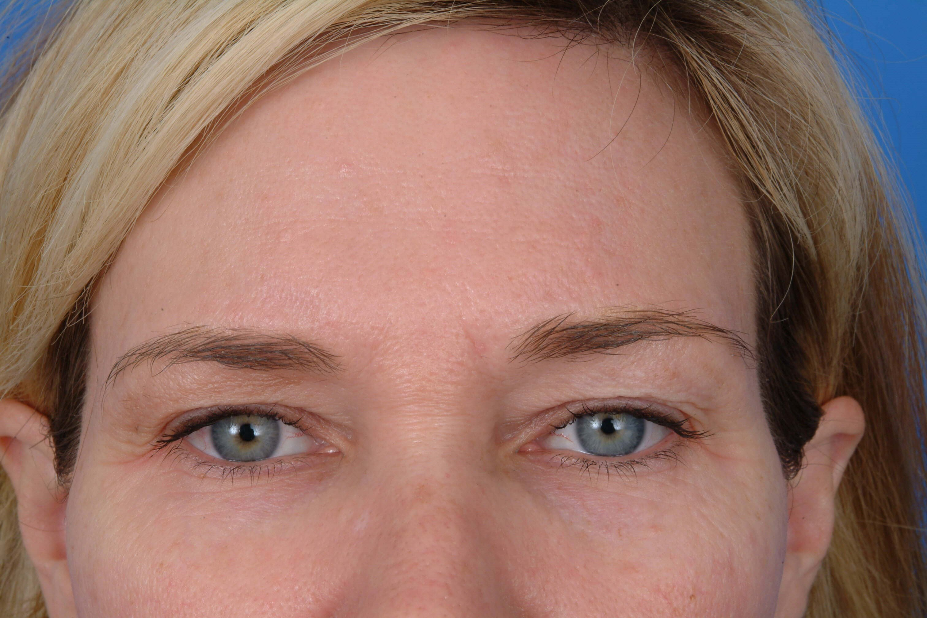 Brow Before Surgery with Dr. Kridel