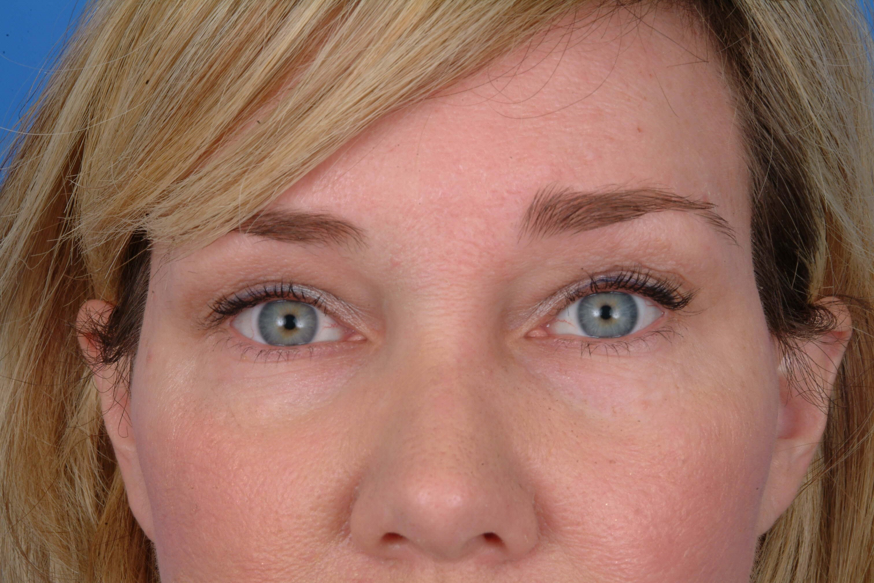 Brow After Facelift and Browlift