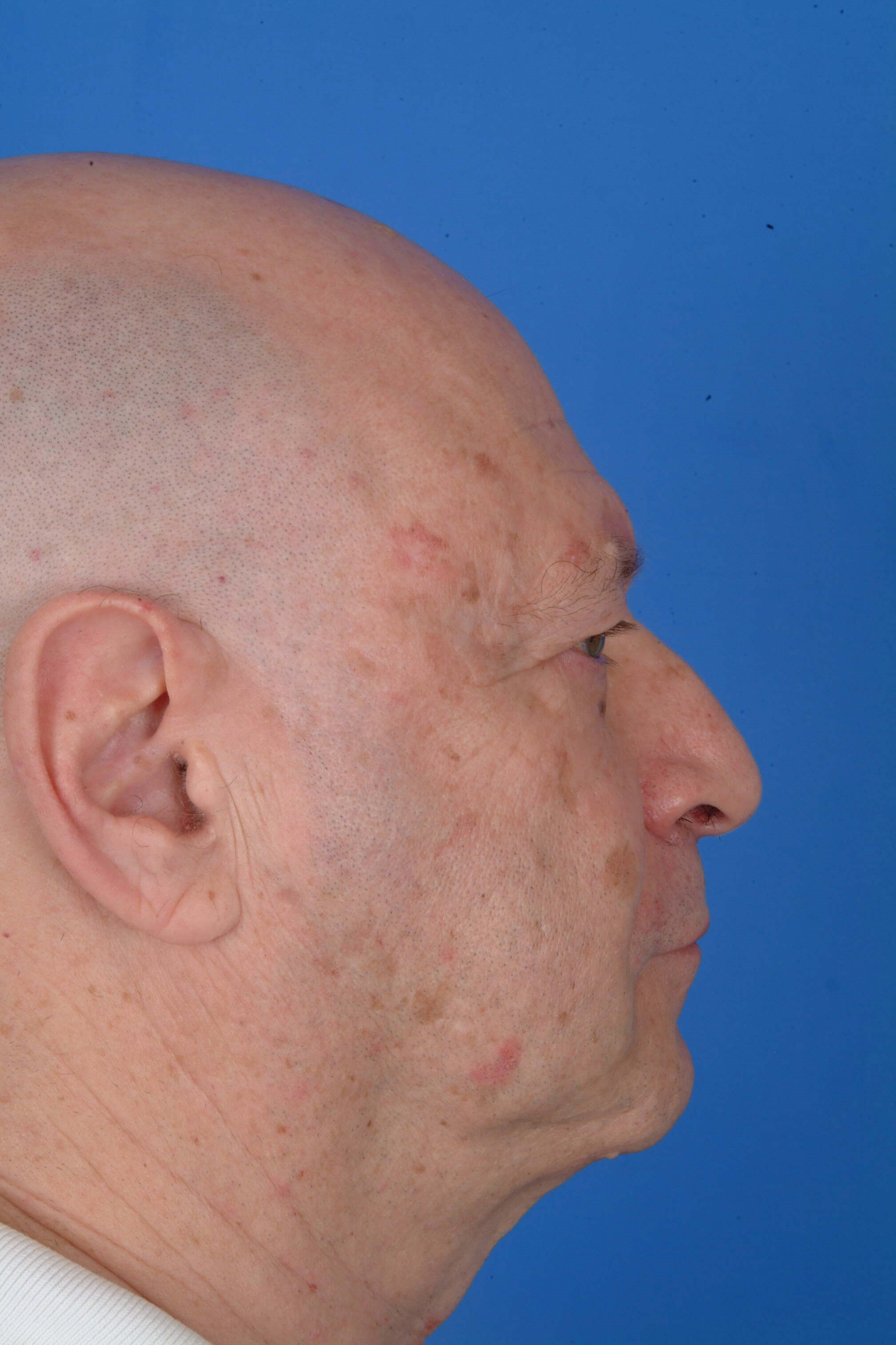 Full Face CO2  Resurfacing Before